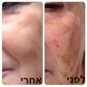 """פילינג לפנים - תמונות לפני ואחרי - ד""""ר אירנה צווקר"""